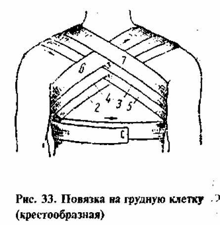 Крестообразная повязка на грудь. Отрывается кусок бинта, кладется на здоро